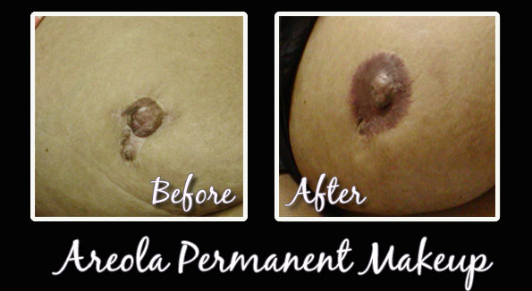 Areolas by Accent Permanent Makeup