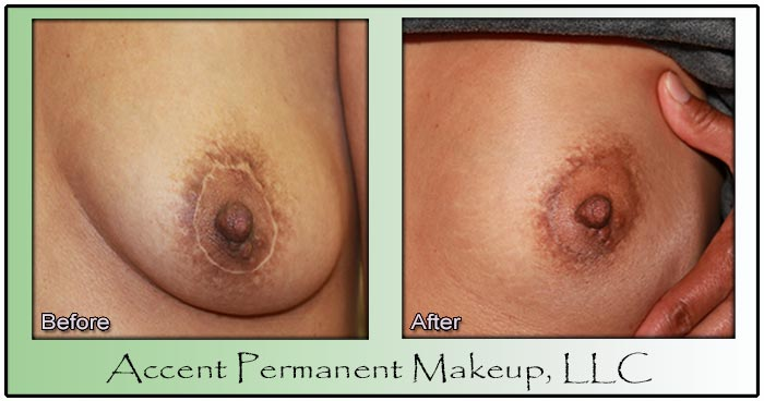 Accent Permanent Makeup Areolas