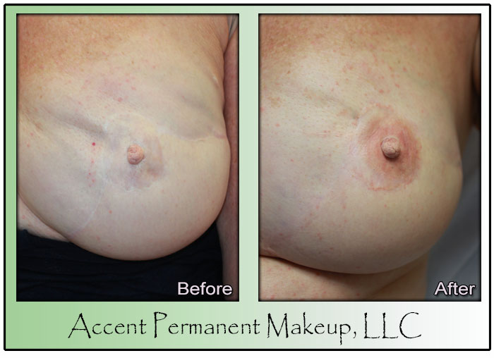 Areola Permanent Makeup
