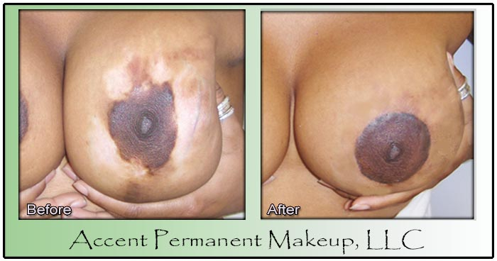 Areola Correction with Permanent Makeup