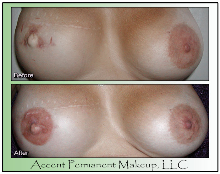 Areola Created With Permanent Makeup and Dry Needling